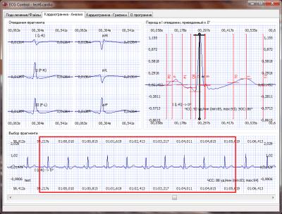 ECG Control 3.20